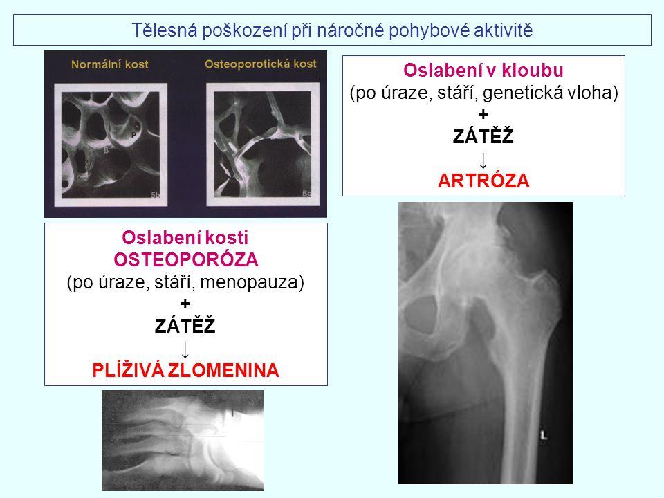  plíživá zlomenina kosti (fractura ossis)  zánět okostice (periostitis) v oblasti úponů svalů na kost  poškození chrupavky (chondropathia)  zánět kloubního pouzdra (synovitis) MIKROTRAUMATA POHYBOVÉHO APARÁTU Tělesná poškození při náročné pohybové aktivitě