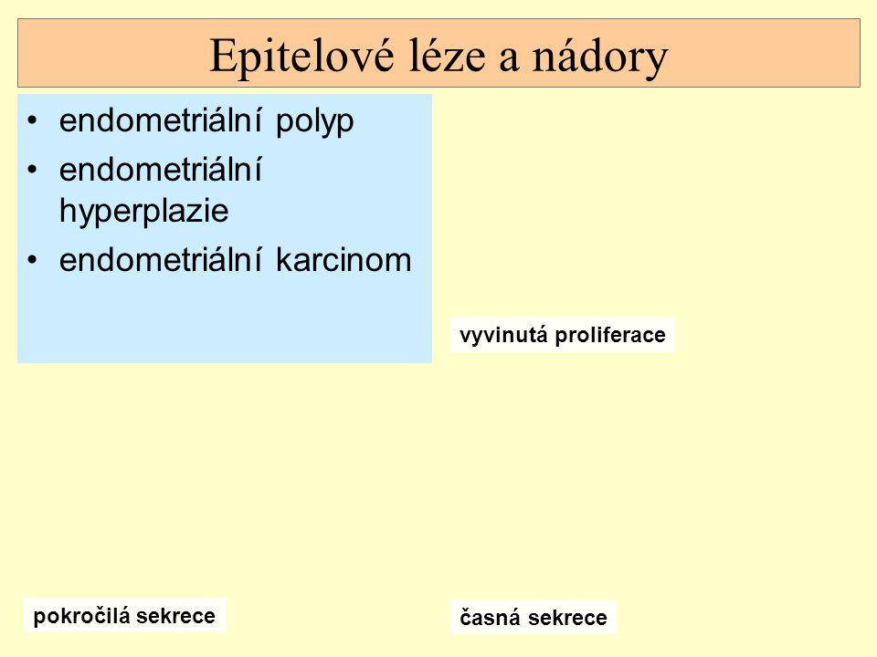 Epitelové léze a nádory endometriální polyp endometriální hyperplazie endometriální karcinom vyvinutá proliferace časná sekrece pokročilá sekrece