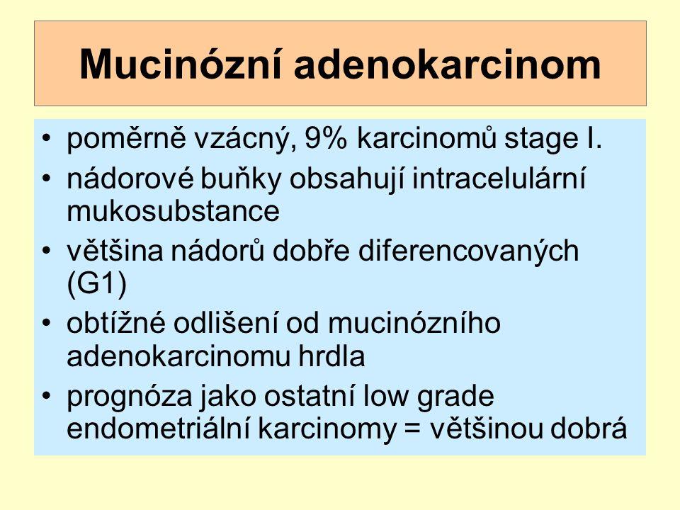 Mucinózní adenokarcinom poměrně vzácný, 9% karcinomů stage I. nádorové buňky obsahují intracelulární mukosubstance většina nádorů dobře diferencovanýc