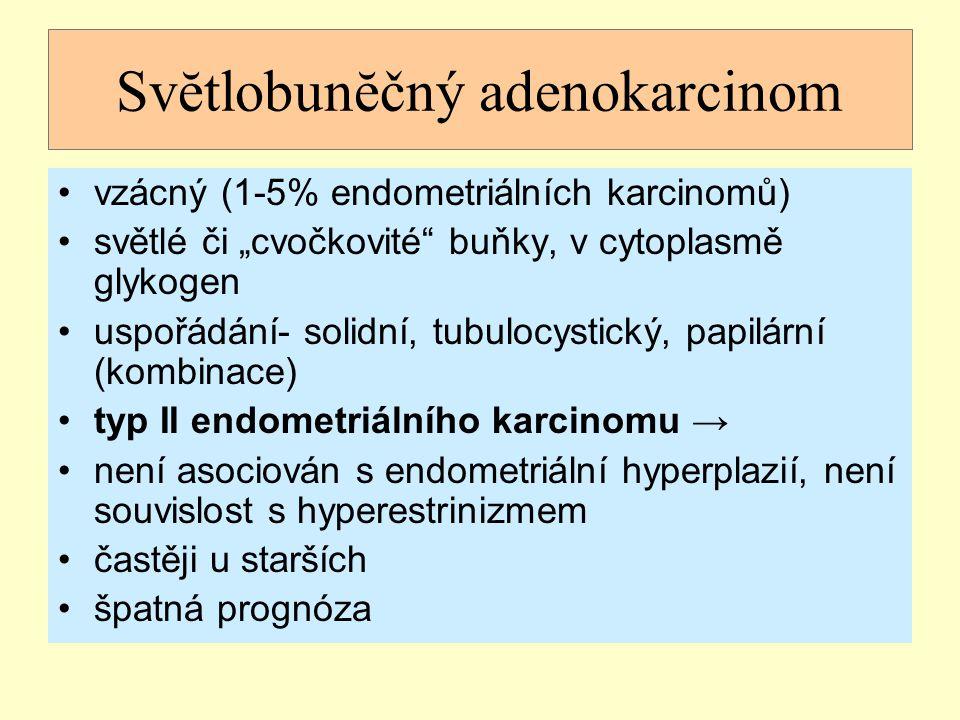 """Svĕtlobunĕčný adenokarcinom vzácný (1-5% endometriálních karcinomů) světlé či """"cvočkovité"""" buňky, v cytoplasmě glykogen uspořádání- solidní, tubulocys"""