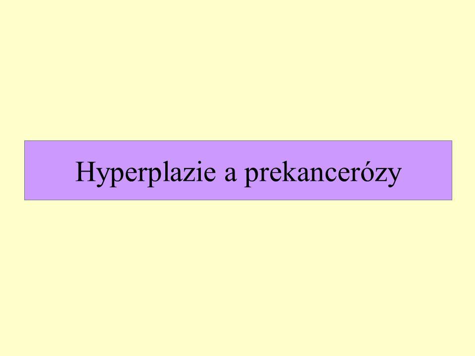 Karcinom endometria endometroidní adenokarcinom mucinózní adenokarcinom serózní adenokarcinom světlobuněčný adenokarcinom smíšený adenokarcinom dlaždicobuněčný karcinom karcinom z přechodních buněk (uroteliální) malobuněčný karcinom nediferencovaný karcinom