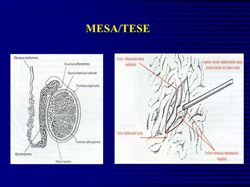 MESA/TESE