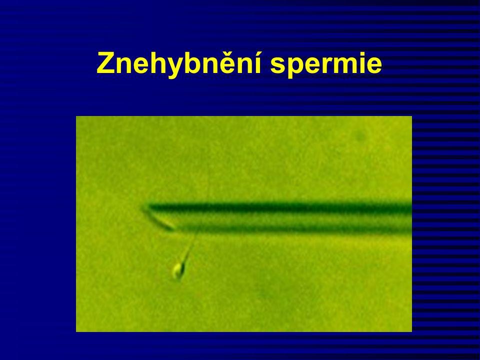 Znehybnění spermie