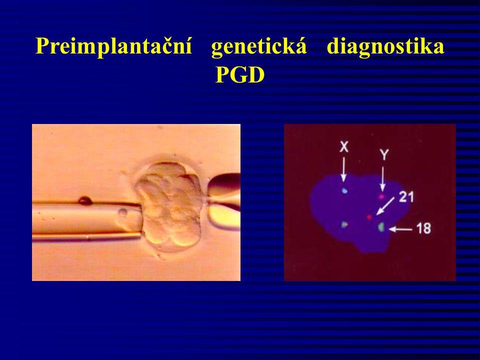 Preimplantační genetická diagnostika PGD
