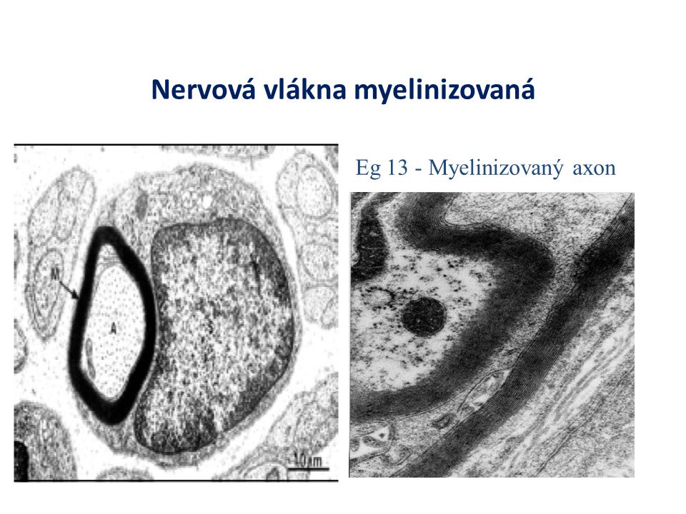 Nervová vlákna myelinizovaná Eg 13 - Myelinizovaný axon