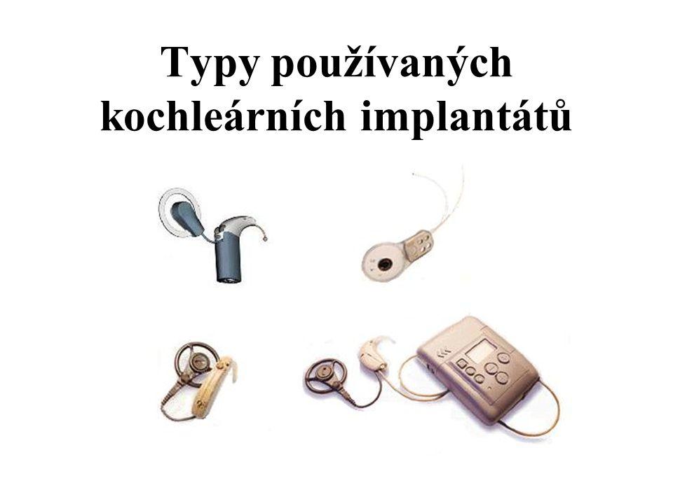 Typy používaných kochleárních implantátů