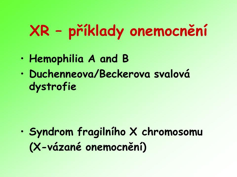 XR – příklady onemocnění Hemophilia A and B Duchenneova/Beckerova svalová dystrofie Syndrom fragilního X chromosomu (X-vázané onemocnění)