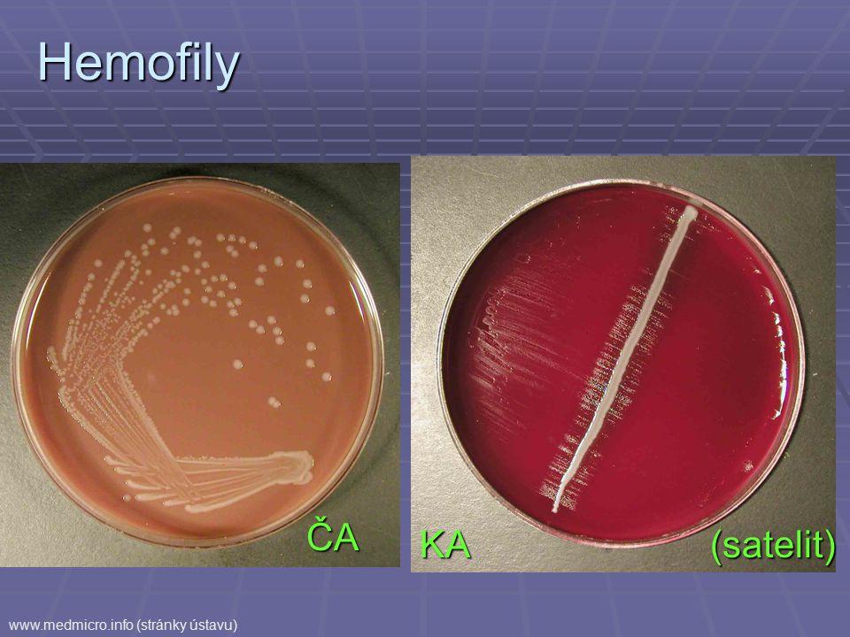 Hemofily ČA KA (satelit) (satelit) www.medmicro.info (stránky ústavu)