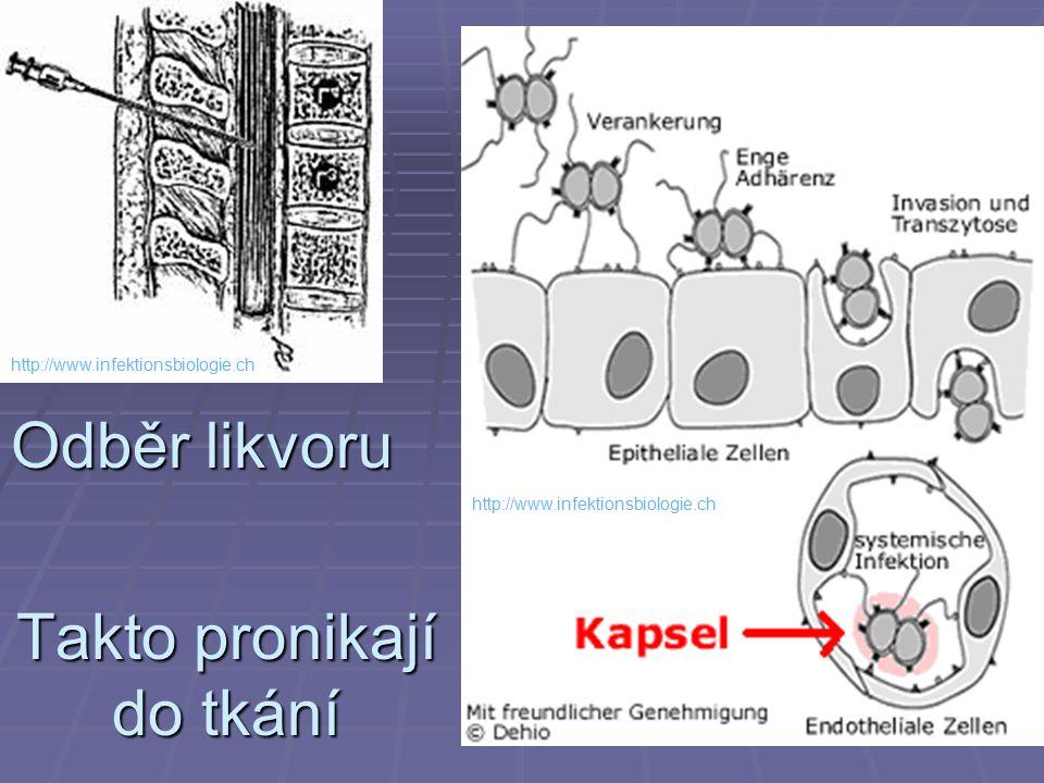 Takto pronikají do tkání Odběr likvoru http://www.infektionsbiologie.ch