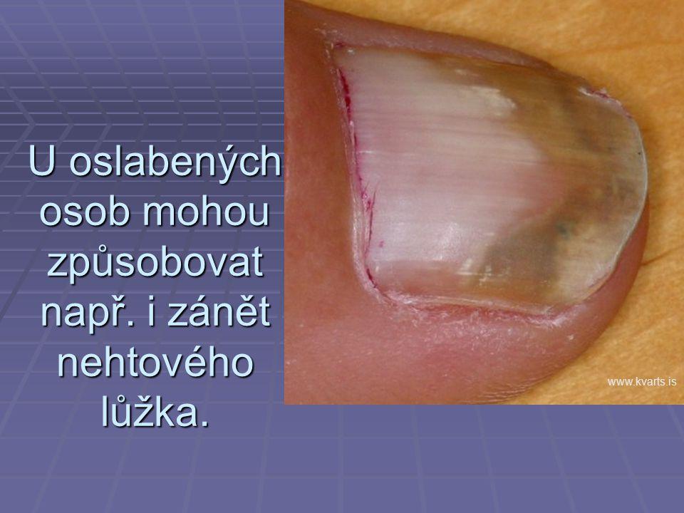 U oslabených osob mohou způsobovat např. i zánět nehtového lůžka. www.kvarts.is