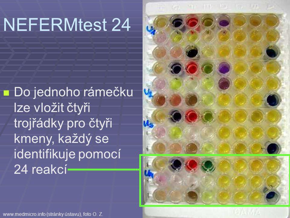 Do jednoho rámečku lze vložit čtyři trojřádky pro čtyři kmeny, každý se identifikuje pomocí 24 reakcí NEFERMtest 24 www.medmicro.info (stránky ústavu), foto O.