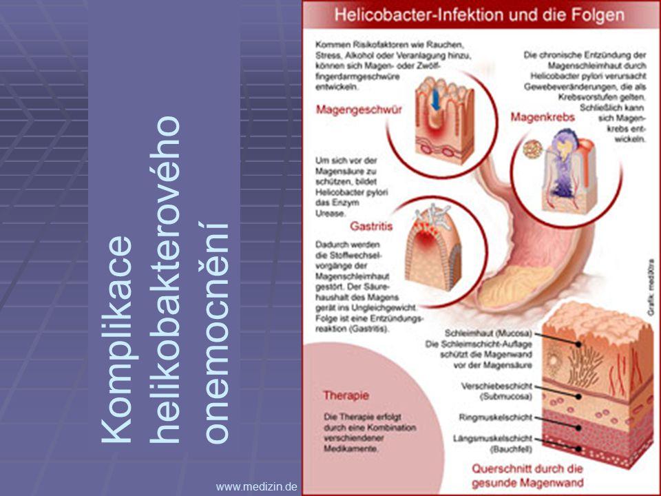 Komplikace helikobakterového onemocnění www.medizin.de