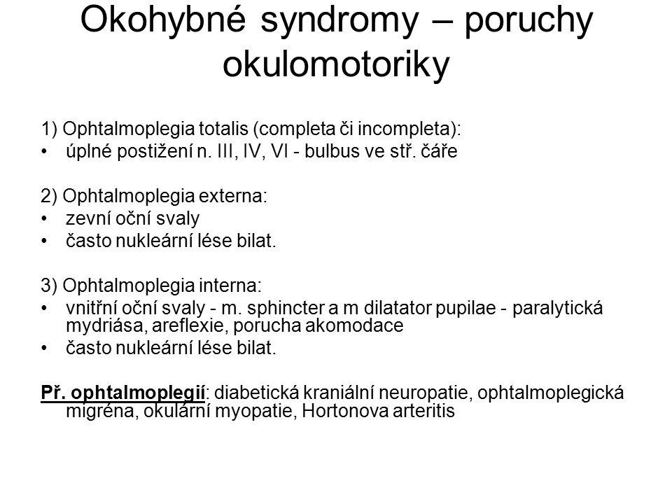 Okohybné syndromy – poruchy okulomotoriky 1) Ophtalmoplegia totalis (completa či incompleta): úplné postižení n. III, IV, VI - bulbus ve stř. čáře 2)