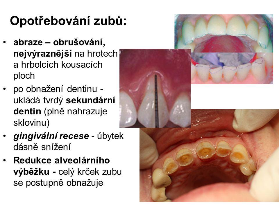 Opotřebování zubů: abraze – obrušování, nejvýraznější na hrotech a hrbolcích kousacích ploch po obnažení dentinu - ukládá tvrdý sekundární dentin (pln