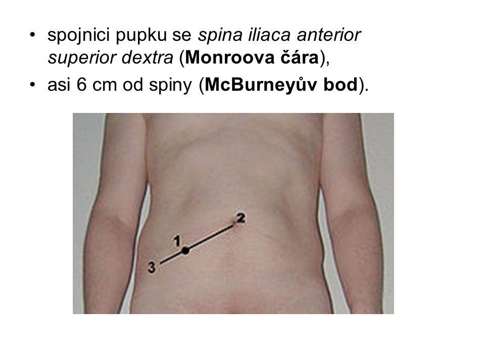 spojnici pupku se spina iliaca anterior superior dextra (Monroova čára), asi 6 cm od spiny (McBurneyův bod).