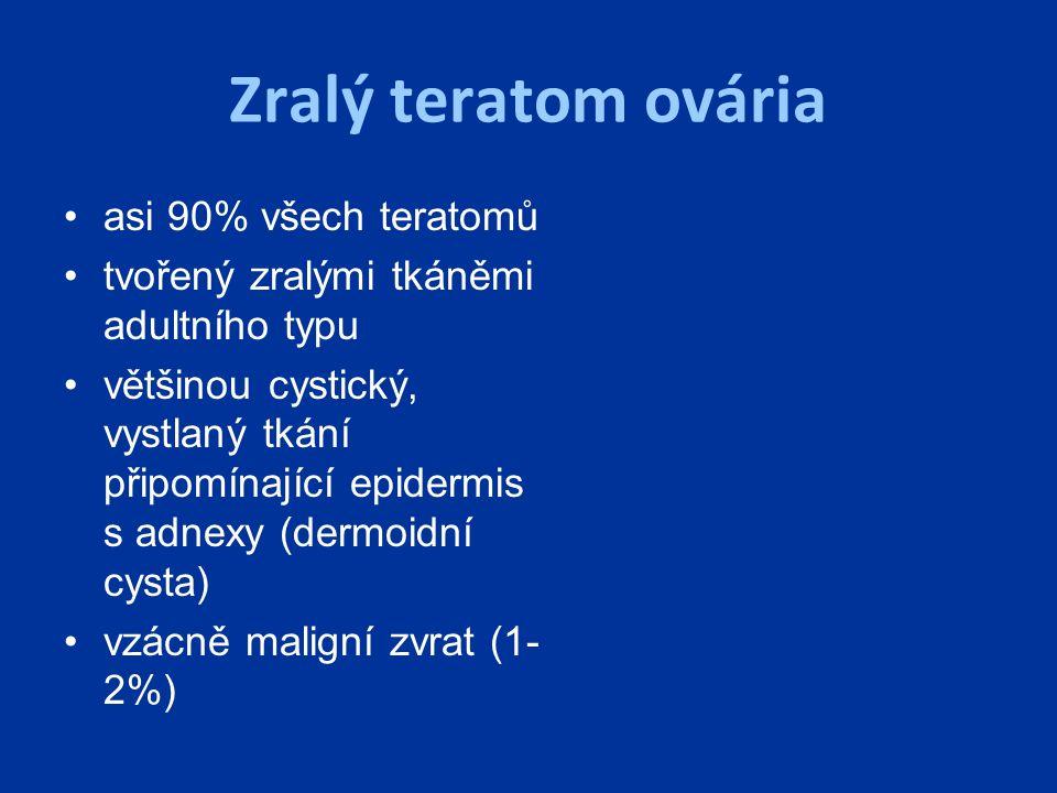 Zralý teratom ovária asi 90% všech teratomů tvořený zralými tkáněmi adultního typu většinou cystický, vystlaný tkání připomínající epidermis s adnexy