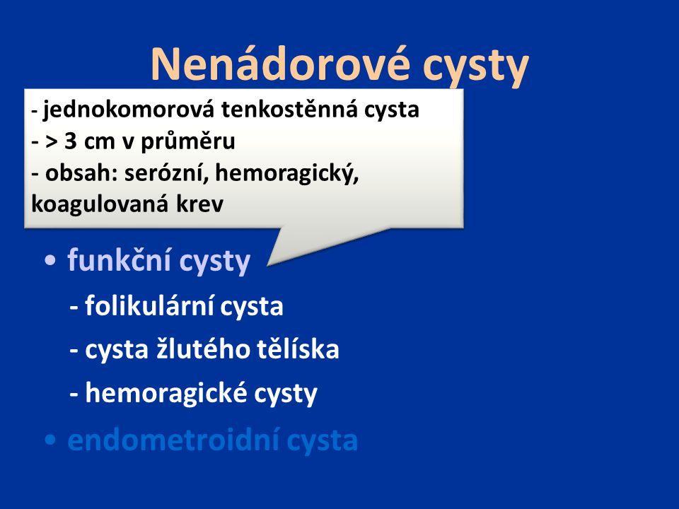 Nenádorové cysty inkluzí cysty - Inkluze povrchového epitelu - Inkluze z epielu fimbrií funkční cysty - folikulární cysta - cysta žlutého tělíska - hemoragické cysty endometroidní cysta - silná, fibrotizovaná stěna - průměr do 15 cm - obsah cysty: polotekutý, hemolyzovaná, vazká krev - silná, fibrotizovaná stěna - průměr do 15 cm - obsah cysty: polotekutý, hemolyzovaná, vazká krev