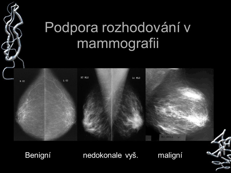 Podpora rozhodování v mammografii Benigní nedokonale vyš. maligní
