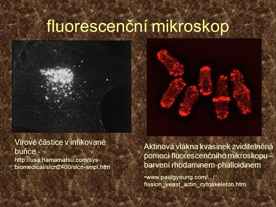 fluorescenční mikroskop Aktinová vlákna kvasinek zviditelněná pomocí fluorescenčního mikroskopu – barvení rhodaminem-phalloidinem www.paulgyoung.com/.