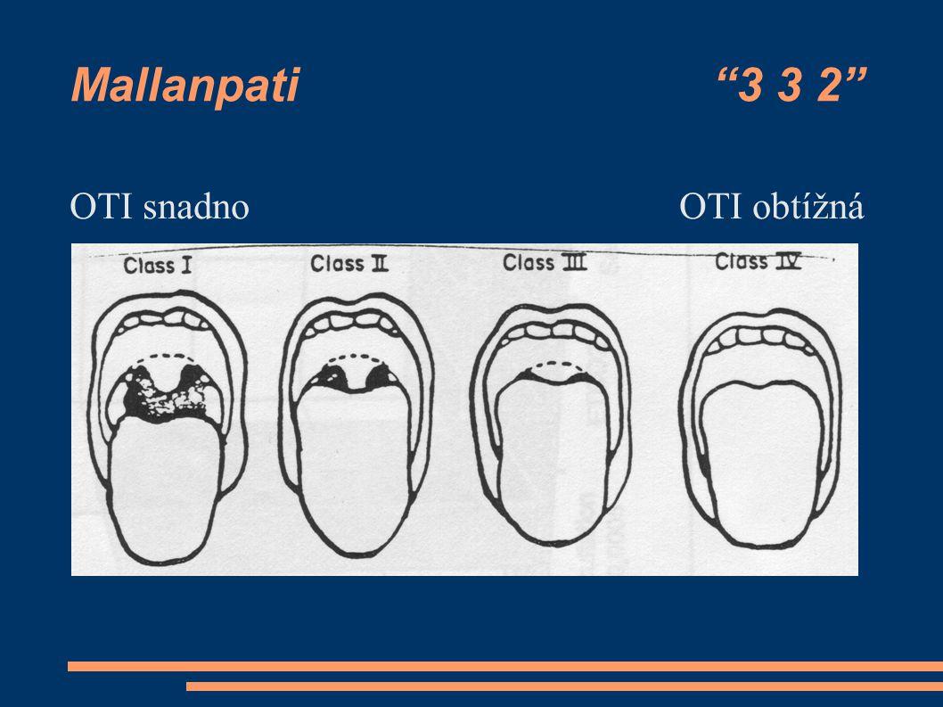 """Mallanpati """"3 3 2"""" OTI snadnoOTI obtížná"""