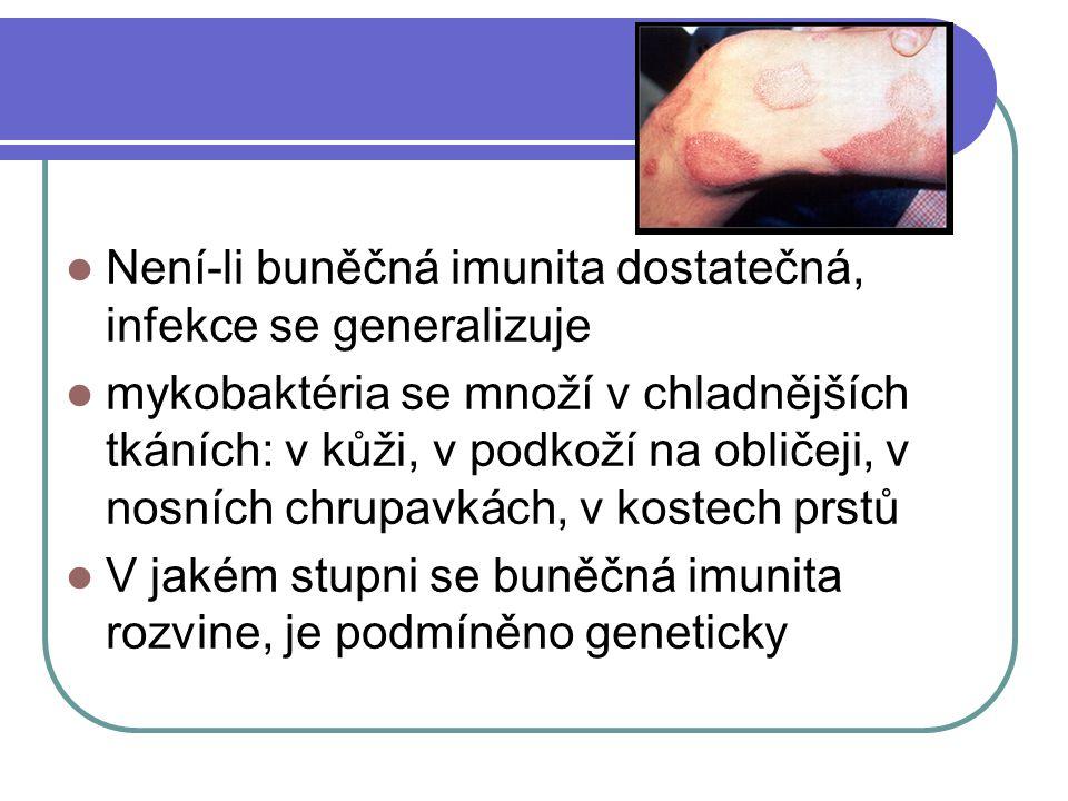 Není-li buněčná imunita dostatečná, infekce se generalizuje mykobaktéria se množí v chladnějších tkáních: v kůži, v podkoží na obličeji, v nosních chr