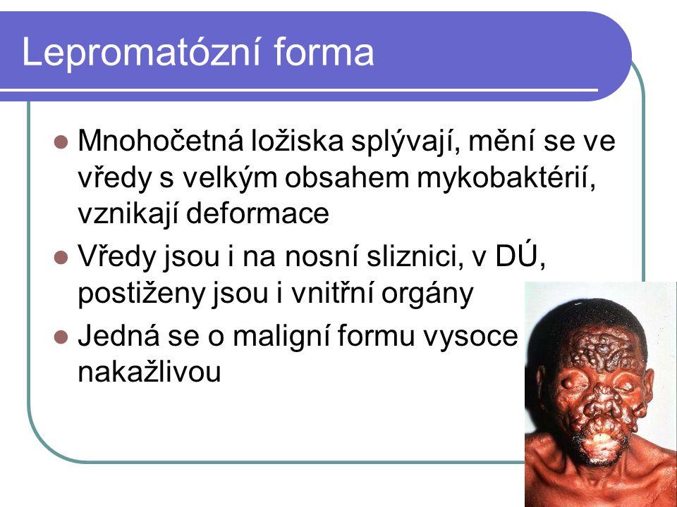 Lepromatózní forma Mnohočetná ložiska splývají, mění se ve vředy s velkým obsahem mykobaktérií, vznikají deformace Vředy jsou i na nosní sliznici, v D