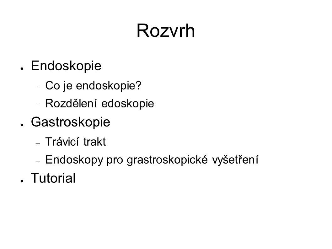 Rozvrh ● Endoskopie  Co je endoskopie.