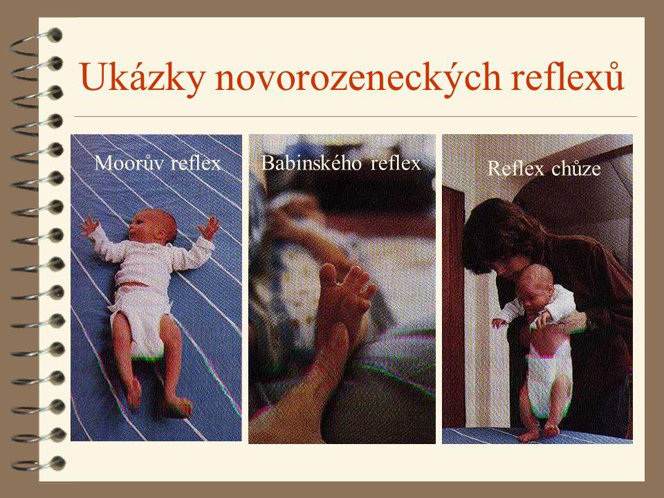 Ukázky novorozeneckých reflexů Moorův reflex reflex Babinského reflex Reflex chůze
