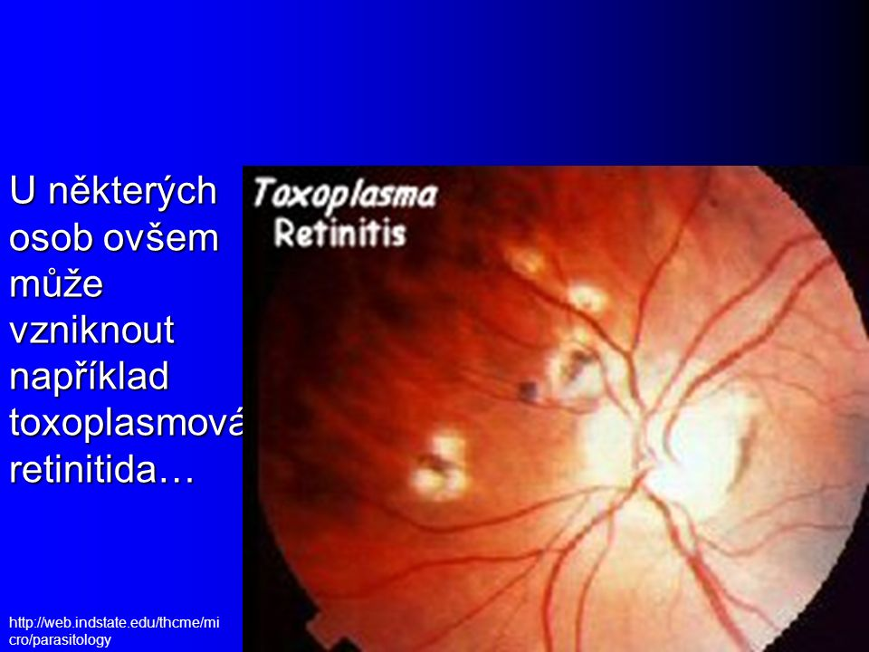 Toxoplasma – životní cyklus http://www.dpd.cdc.gov/dpdx/images/ParasiteImages/S- Z/Toxoplasmosis/Toxoplasma_LifeCycle.gif