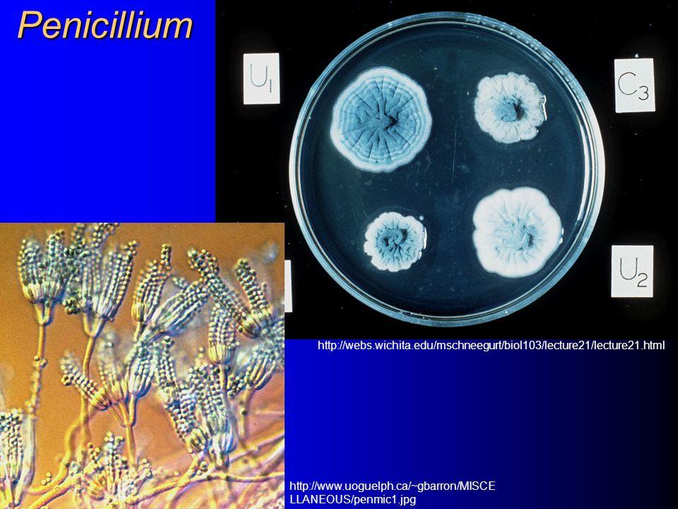 Rod Penicillium – Plíseň štětičková Patogenita pro člověka je nízká.