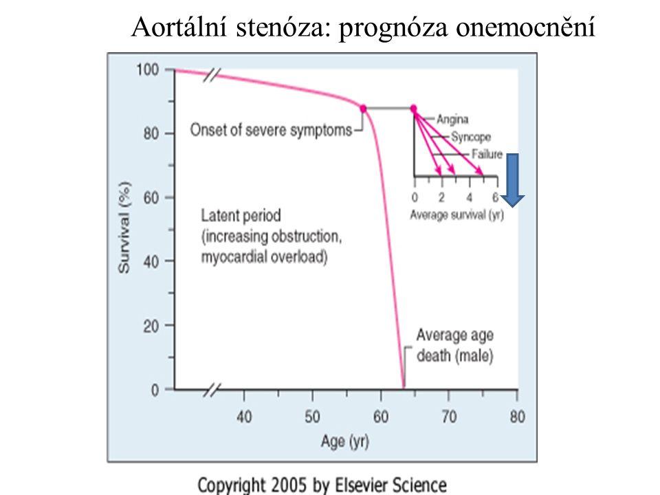 Aortální stenóza: prognóza onemocnění Prognosis since symp