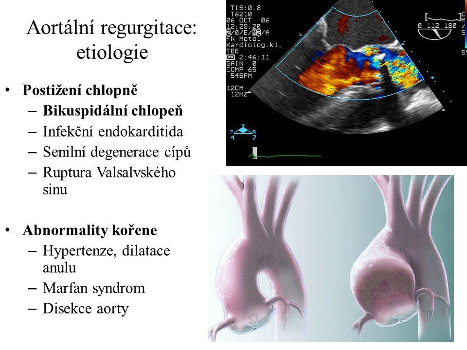 Aortální regurgitace: etiologie Postižení chlopně – Bikuspidální chlopeň – Infekční endokarditida – Senilní degenerace cípů – Ruptura Valsalvského sin