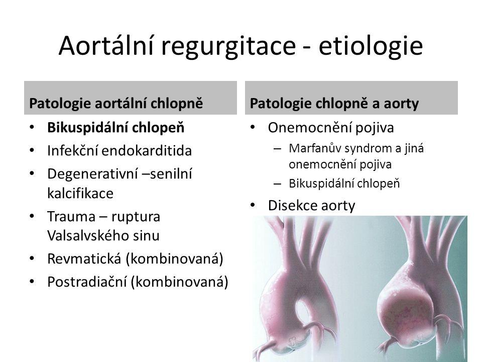 Aortální regurgitace - etiologie Patologie aortální chlopně Bikuspidální chlopeň Infekční endokarditida Degenerativní –senilní kalcifikace Trauma – ru