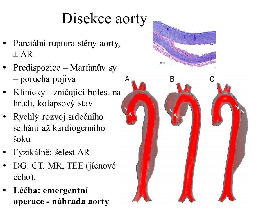 Parciální ruptura stěny aorty, ± AR Predispozice – Marfanův sy – porucha pojiva Klinicky - zničující bolest na hrudi, kolapsový stav Rychlý rozvoj srd
