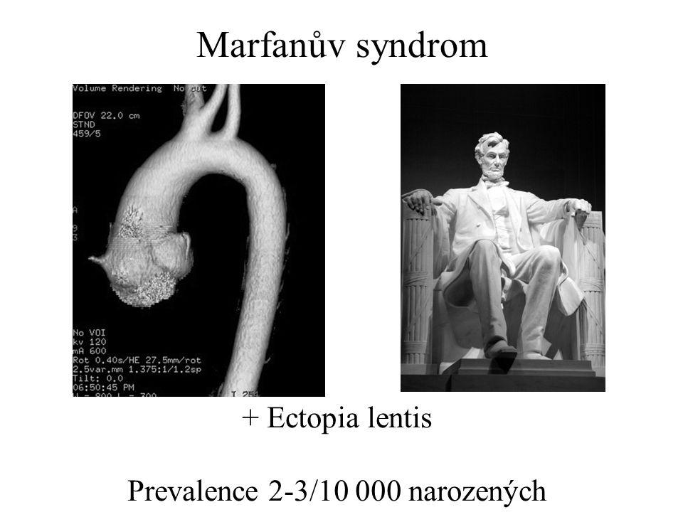 Marfanův syndrom + Ectopia lentis Prevalence 2-3/10 000 narozených