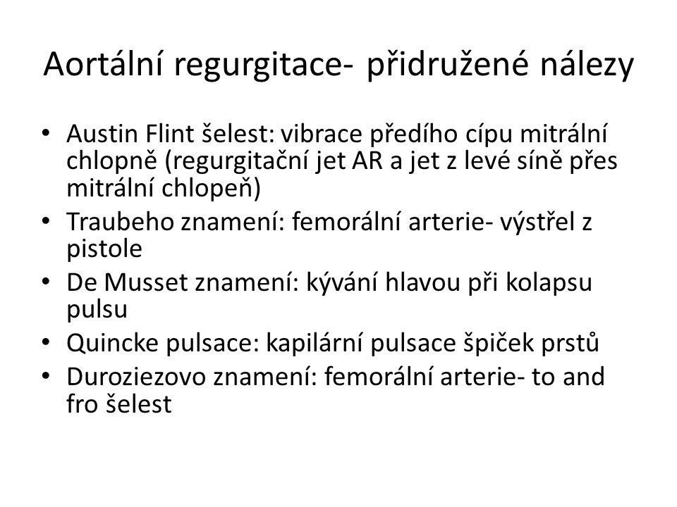 Aortální regurgitace- přidružené nálezy Austin Flint šelest: vibrace předího cípu mitrální chlopně (regurgitační jet AR a jet z levé síně přes mitráln