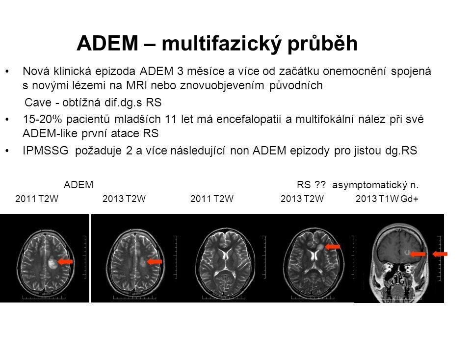 ADEM – multifazický průběh Nová klinická epizoda ADEM 3 měsíce a více od začátku onemocnění spojená s novými lézemi na MRI nebo znovuobjevením původní
