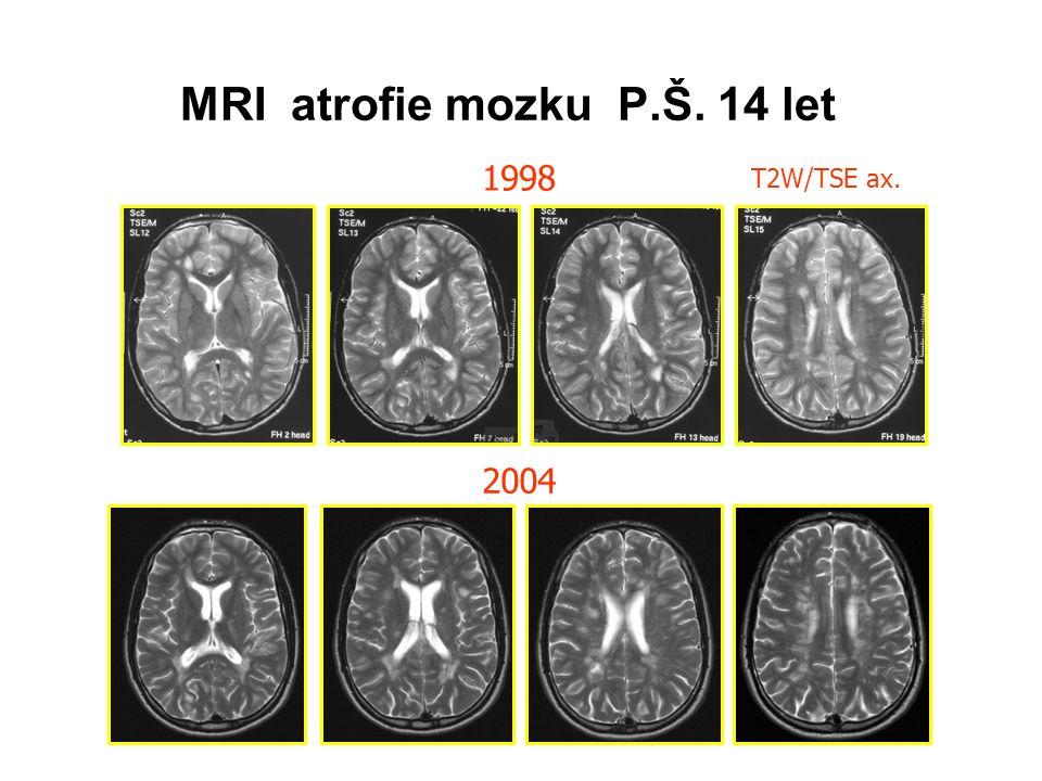 T2W/TSE ax. 1998 2004 MRI atrofie mozku P.Š. 14 let