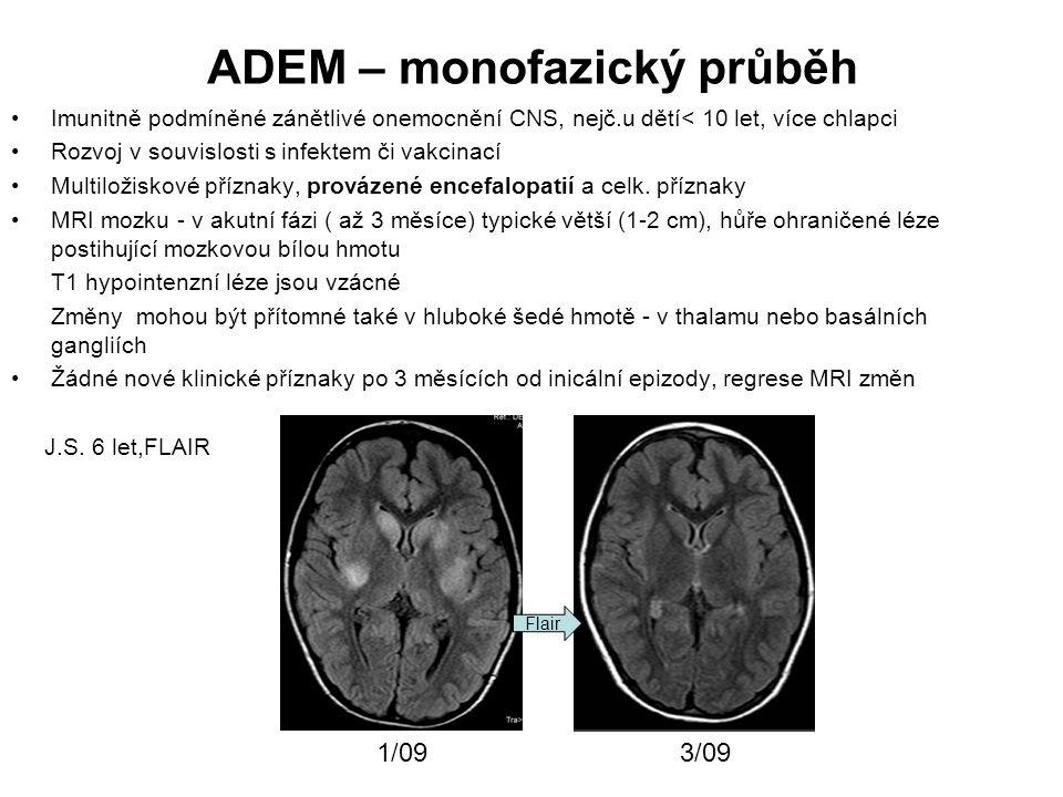 ADEM – monofazický průběh Imunitně podmíněné zánětlivé onemocnění CNS, nejč.u dětí< 10 let, více chlapci Rozvoj v souvislosti s infektem či vakcinací