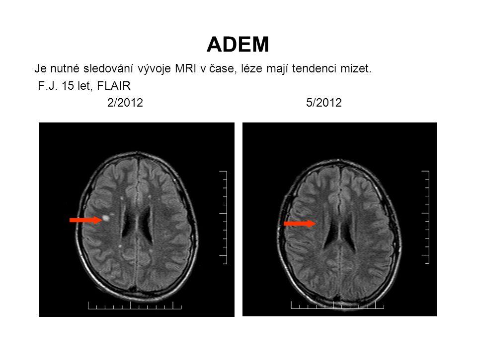 ADEM Je nutné sledování vývoje MRI v čase, léze mají tendenci mizet. F.J. 15 let, FLAIR 2/2012 5/2012
