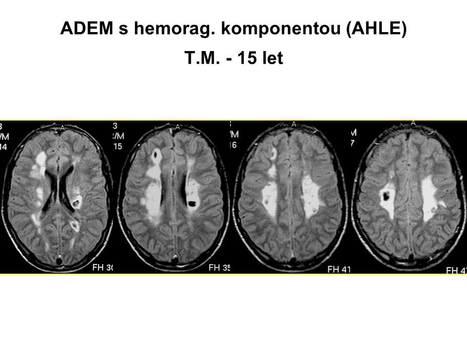 ADEM – multifazický průběh Nová klinická epizoda ADEM 3 měsíce a více od začátku onemocnění spojená s novými lézemi na MRI nebo znovuobjevením původních Cave - obtížná dif.dg.s RS 15-20% pacientů mladších 11 let má encefalopatii a multifokální nález při své ADEM-like první atace RS IPMSSG požaduje 2 a více následující non ADEM epizody pro jistou dg.RS ADEM RS ?.