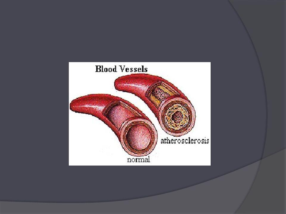 Komplexní etiopatologie  dříve ateroskleróza považována za degenerativní chorobu  dnes je považována za zvláštní typ zánětu, nejasné etiologie (zánětlivé-degenerativní onemocnění)  hlavní příčinou je ukládání tukových látek, především cholesterolu, do stěny našich cév, zúžení cév  podezřívány jsou některé mikroby, zvláště Chlamydia pneumonie, herpetické viry jako cytomegalovirus, homocystein, aj.