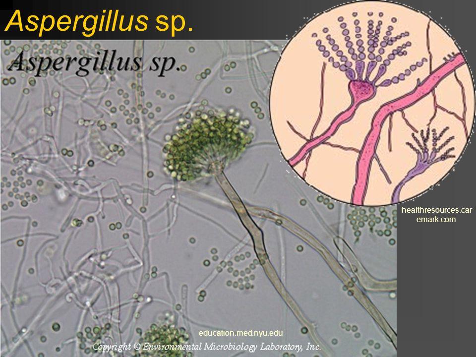 Aspergillus sp. www.sci.muni.cz 129.215.156.68 www.mycolog.com