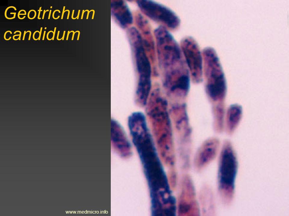 Saccharomyces cerevisiae www.zsdukla.cz/nature/article86.php