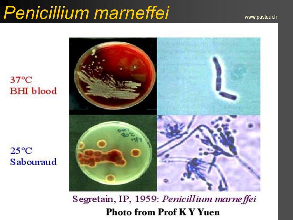 Rhodotorula rubra www.medmicro.info
