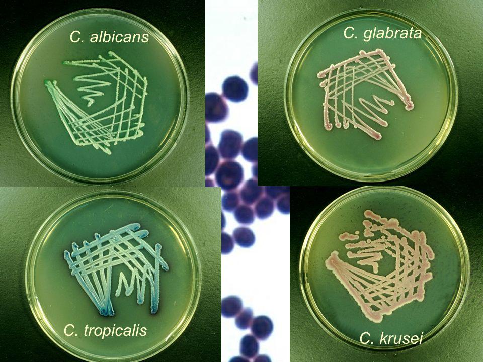 Chromogenní půda při diagnostice kandid Používají se různé chromogenní půdy. Některé odliší pouze Candida albicans od ostatních, jiné rozliší vzájemně