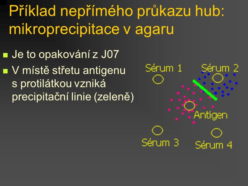 Vzhled výsledků kultivace je u vláknitých hub oproti kvasinkám značně odlišný, jak na Sabouraudově agaru, tak případně i na agaru krevním. Některé z n