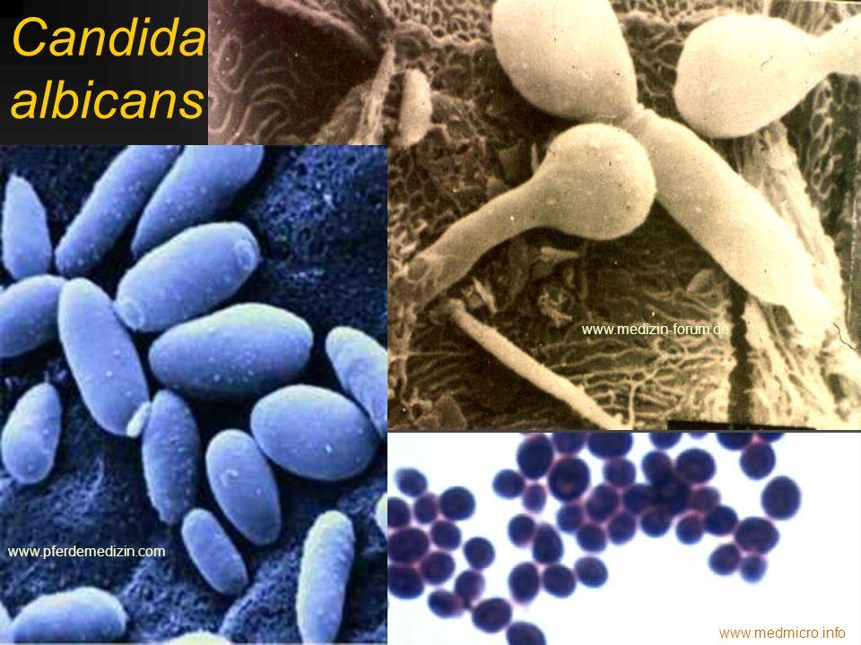 Defilé původců: Candida albicans pathmicro.med.sc.edu www.doctorfungus.org www.schoolwork.de