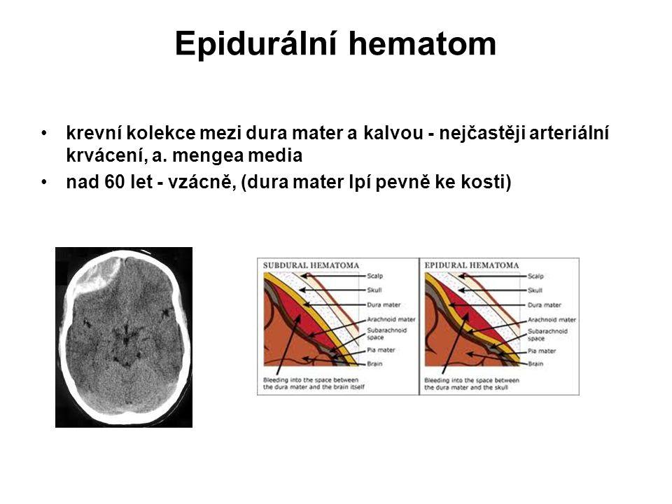 Epidurální hematom krevní kolekce mezi dura mater a kalvou - nejčastěji arteriální krvácení, a. mengea media nad 60 let - vzácně, (dura mater lpí pevn