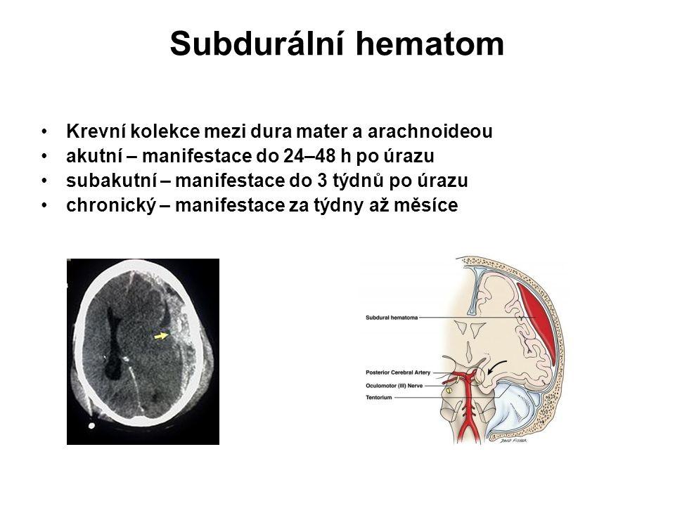 Subdurální hematom Krevní kolekce mezi dura mater a arachnoideou akutní – manifestace do 24–48 h po úrazu subakutní – manifestace do 3 týdnů po úrazu